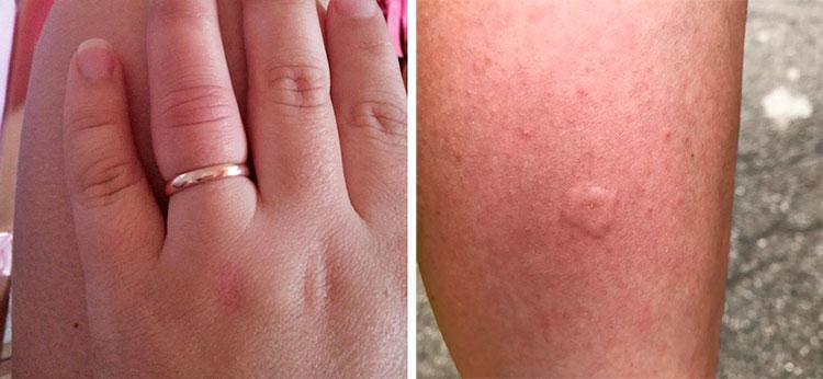 Симптомы укуса осы