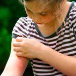 Укус осы и последствия от укуса — реакция и осложнения