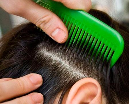 Вши и гниды в волосах человека - как найти и вывести