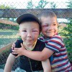 Что делать, если ребенка укусила оса?