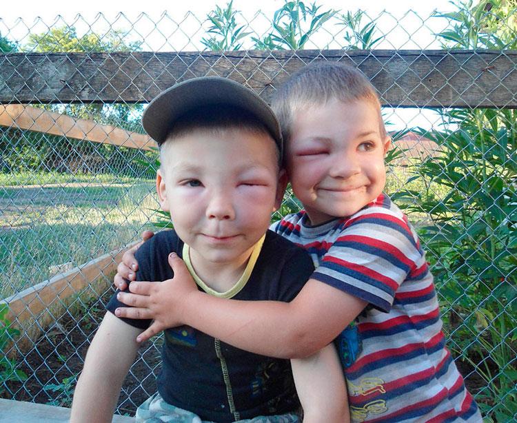 Что делать если ребенка укусила оса
