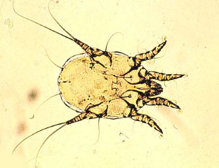 Ушной клещ под микроскопом Otodectes cynotis
