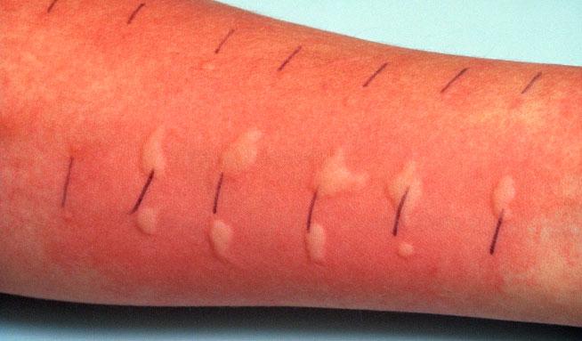 аллергия лечение белками