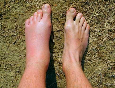 Шершнь укусил в ногу - аллергическая реакция