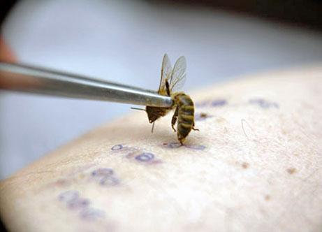 Лечение укусами пчел, точки ужаливания