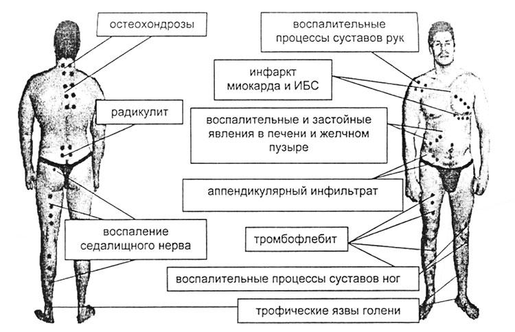 Апитерапия - точки ужаливания (схема)