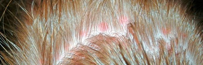 Аллергия на Дихлофос
