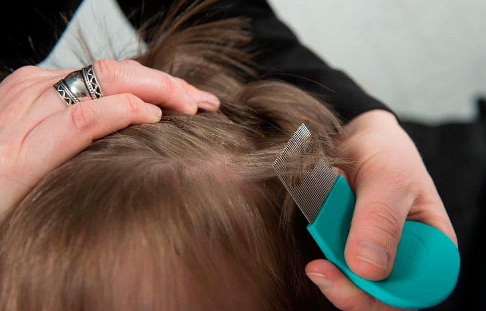 Вычесывание вшей и гнид у ребенка гребнем для волос