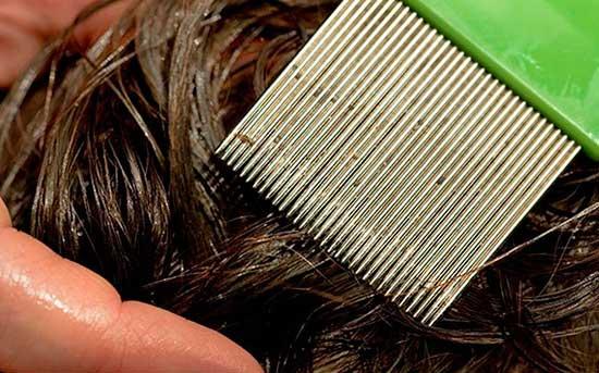 Вычесывание волос гребнем от вшей и гнид Паранит