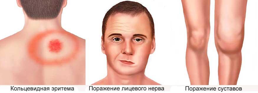 Симптомы болезни Лайма - клещевой боррелиоз