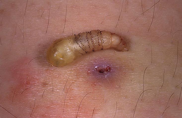 Как вытащить личинку овода из под кожи у человека?