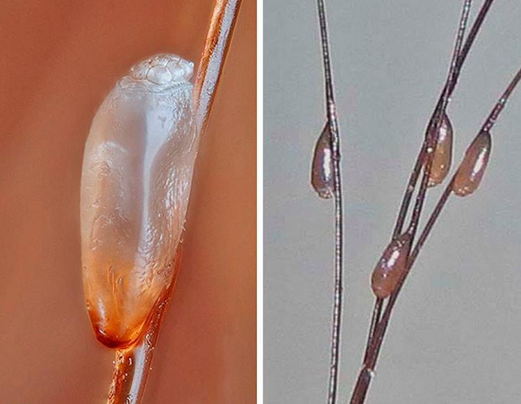 Как выглядят гниды в волосах человека - фото