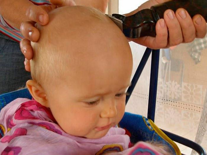 Побрить налысо от вшей - самый простой способ лечения педикулеза